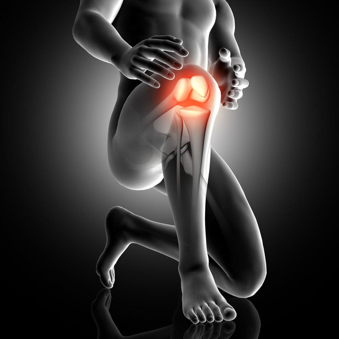 rotula desplazada lesion